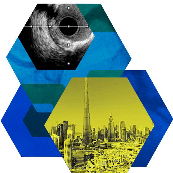 Live case1 - Serie - September 2nd, Dubai